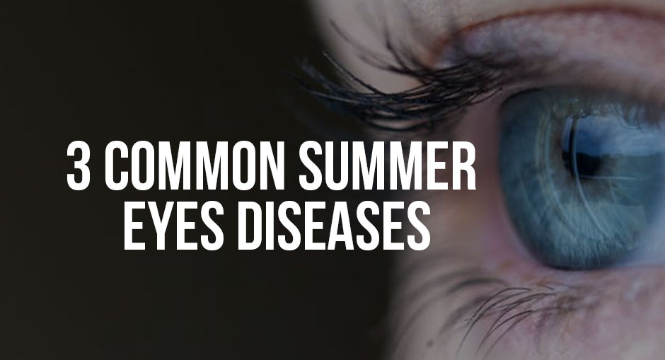 How to Prevent 3 Common Summer Eye Diseases